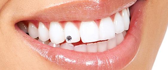 Zahnschmuck – unterstreicht Ihr strahlendes Lächeln